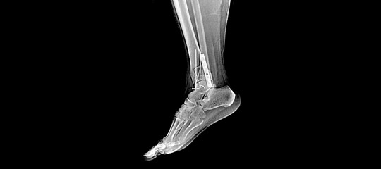 X-ray enhancement